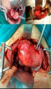 uterus-cancer